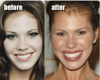 nikki cox, she used to be so pretty then plastic surgery happened