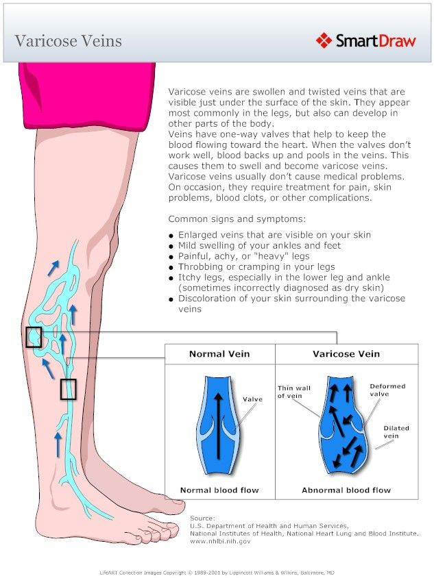 Information on varicose veins and some of the common symptoms. Learn more at www.veinsnj.com