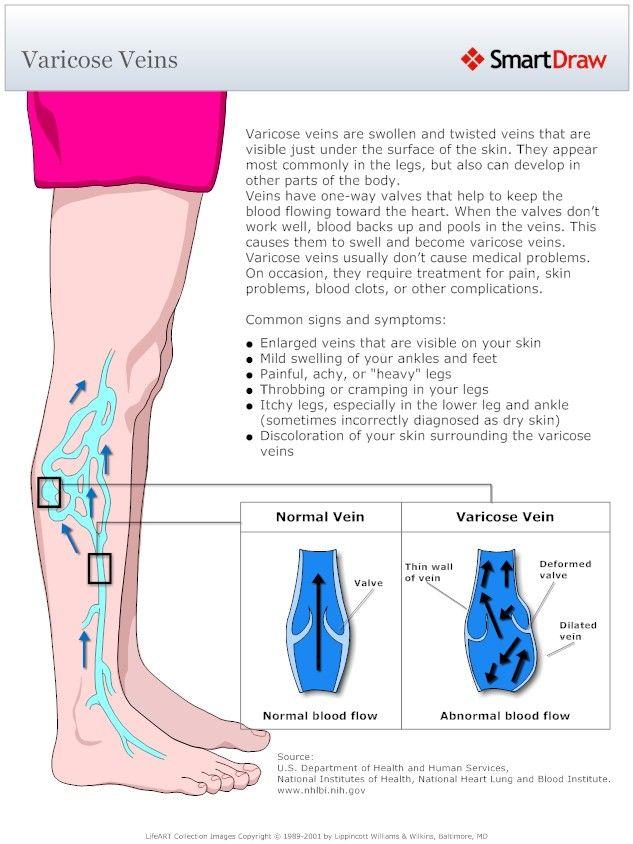 Foot Pain Vein Diagram - Electrical Work Wiring Diagram •