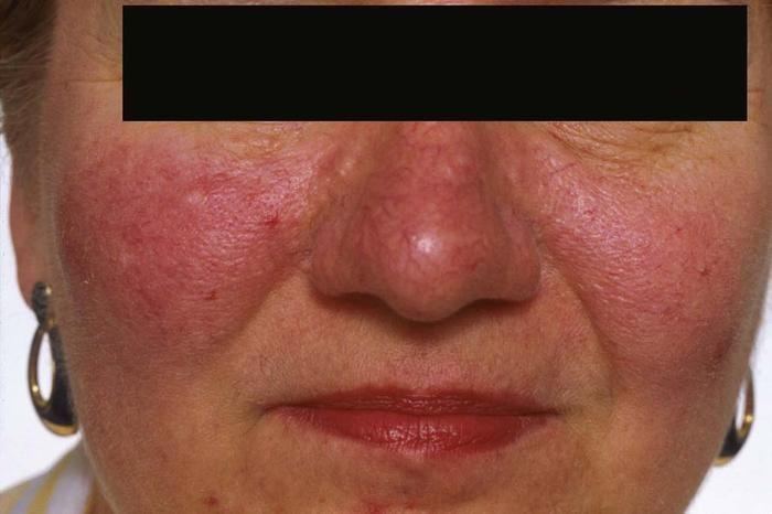 A rozacea (borvirág) is egy komoly bőrbetegség!