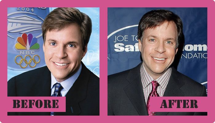 Bob Costas Plastic Surgery Before And After Bob Costas Plastic Surgery #BobCostasPlasticSurgery #BobCostas #gossipmagazines