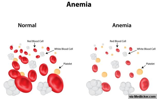 Iron Deficiency Anemia: A complete Guide