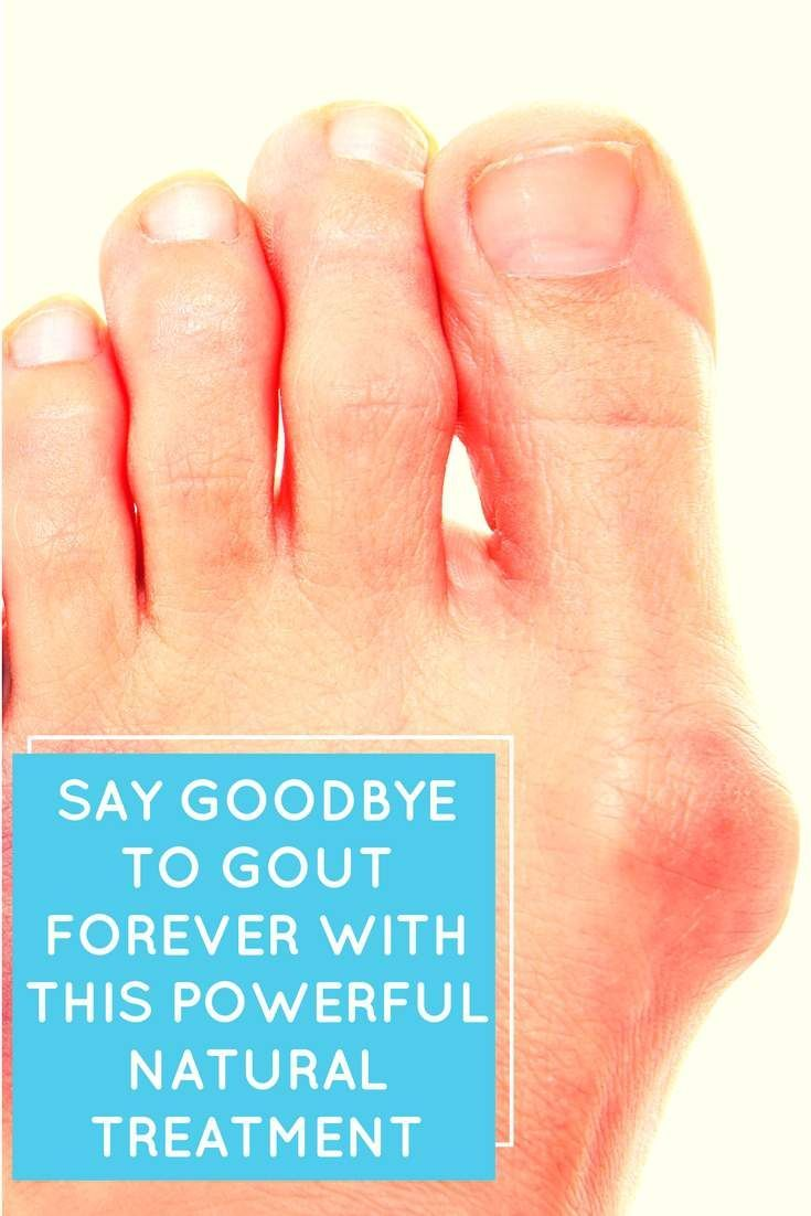 Gout is a complicated form of arthritis that is covered in mystery and is mostly overlooked by people who haven't experienced it. This condition can be unbearable for those who have it.