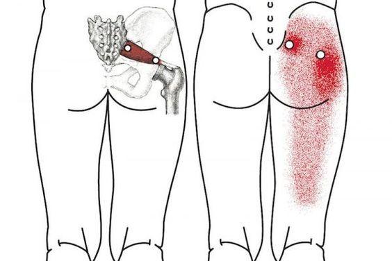 Si vous avez des douleurs de sciatique ou de dos, voici ce qu'il faut faire – Family santé