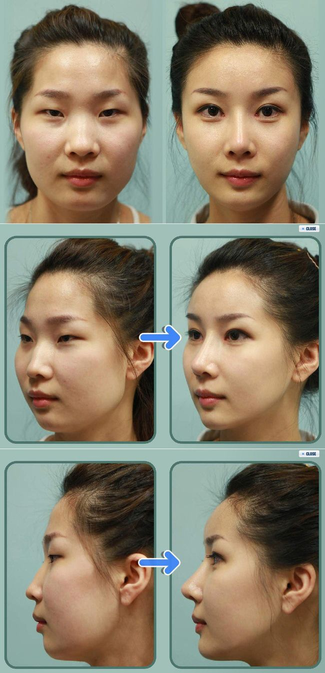 Korean woman before and after plastic surgery. It's very sad to me.