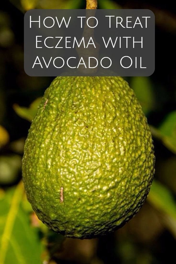 How to treat eczema with avocado oil