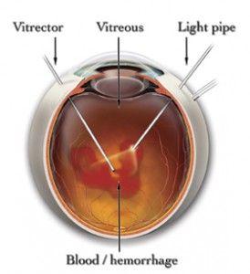 Vitrectomy Surgery