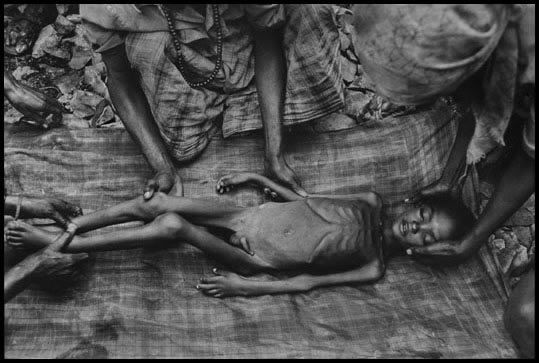 Somalia, 1992 - Famine victim sewn into burial shroud.