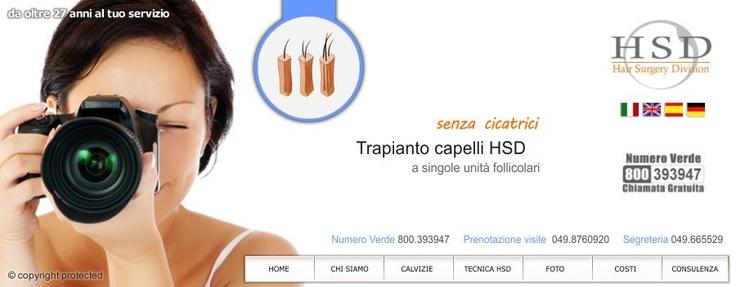 Foto prima e dopo il trapianto capelli HSD   Capelli, Foto ...