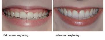 A dental crown is a tooth cap placed over a tooth covering by the crown lengthening procedure to improve appearance. We offers dental cap without pain and low cost in Karnataka