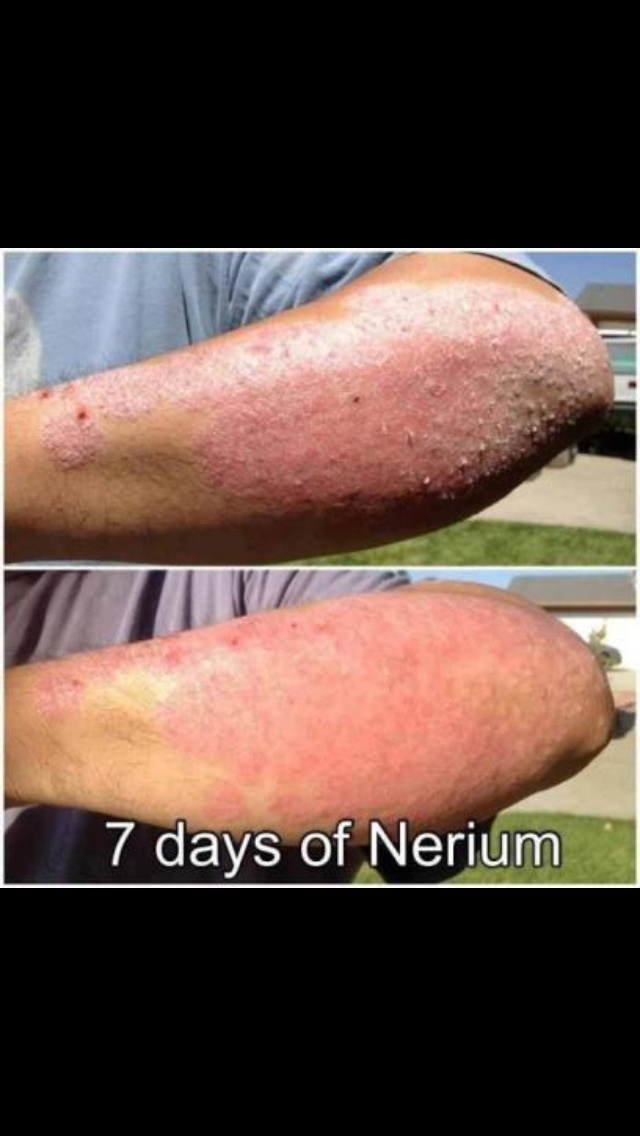 More Real Results with NeriumAD! All our pictures are supplied by the customer, none of these are retouched or submitted by Nerium the company. You are seeing REAL RESULTS. www.youthsecrets.nerium.com