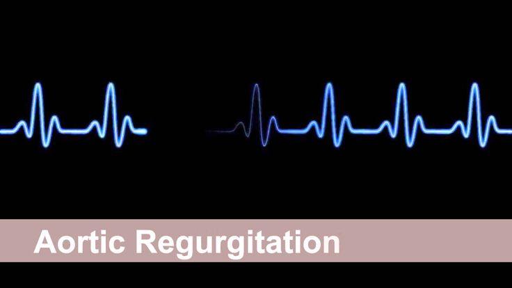 Aortic Regurgitation Murmur (Aortic Insufficiency) - Heart Sound Collect...
