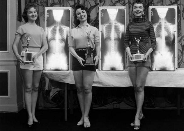10 Bizarre Schönheitswettbewerb aus der Vergangenheit - http://bestelisten.com/10-bizarre-schonheitswettbewerb-aus-der-vergangenheit/