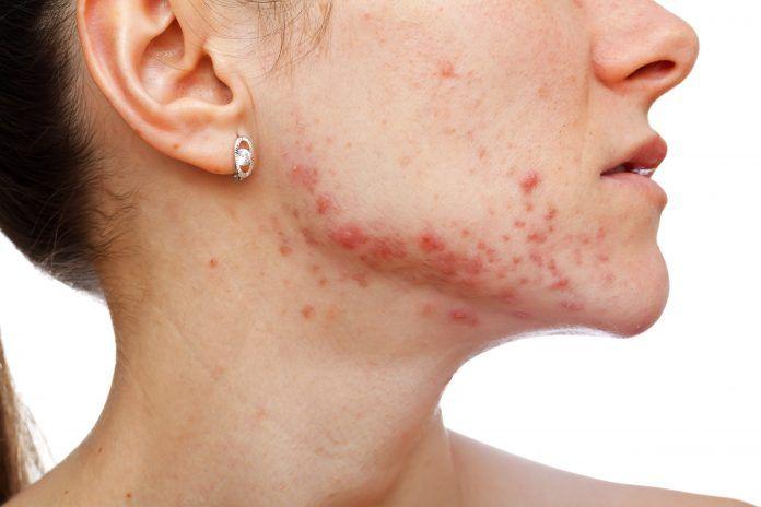 Tego nie kupuj! 10 składników, których lepiej unikać w kosmetykach! #kosmetyki #cosmetics #makeup