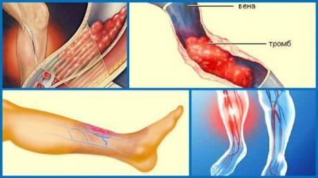 Предотвратить развитие тромбов поможет простое, но мощное средство | Naget.Ru