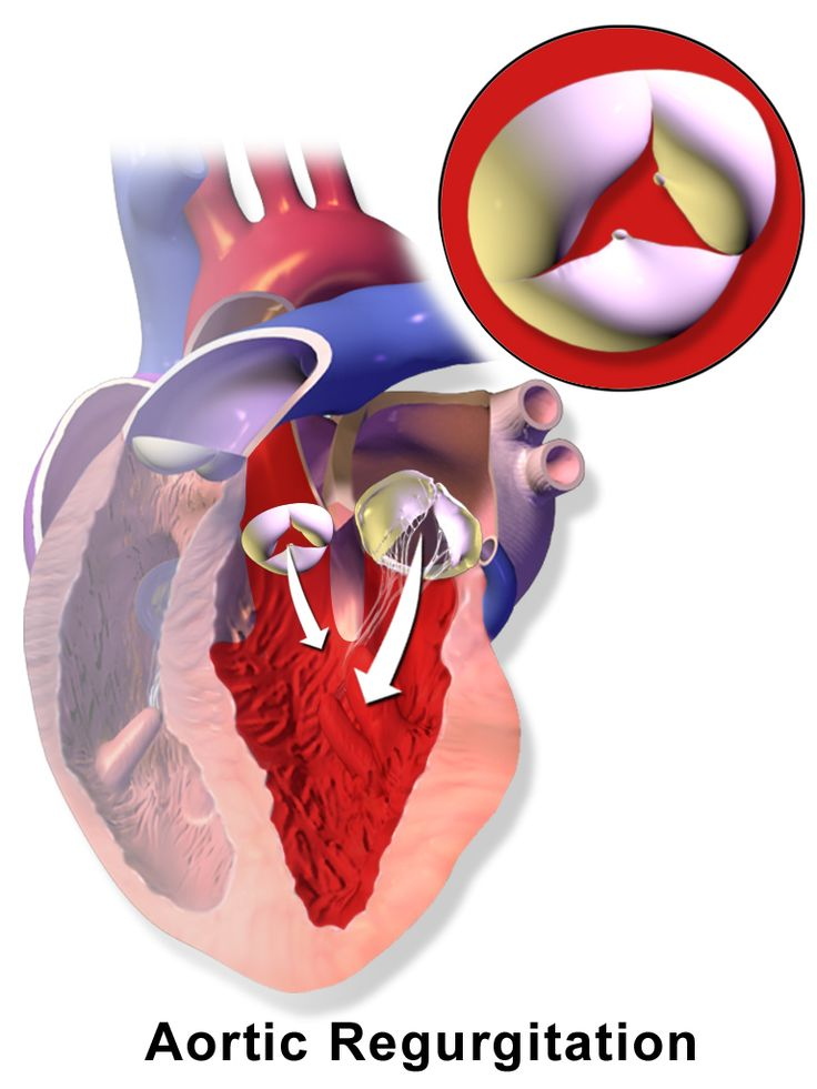 Aortic regurgitation (AR), also known as aortic insufficiency (AR), is the leaking of the aortic valve of the heart that causes blood to flow in the reverse direction during ventricular diastole, from the aorta into the left ventricle.... http://www.natural-health-news.com/aortic-valve-regurgitation-causes-symptoms-diagnoses-and-treatment/