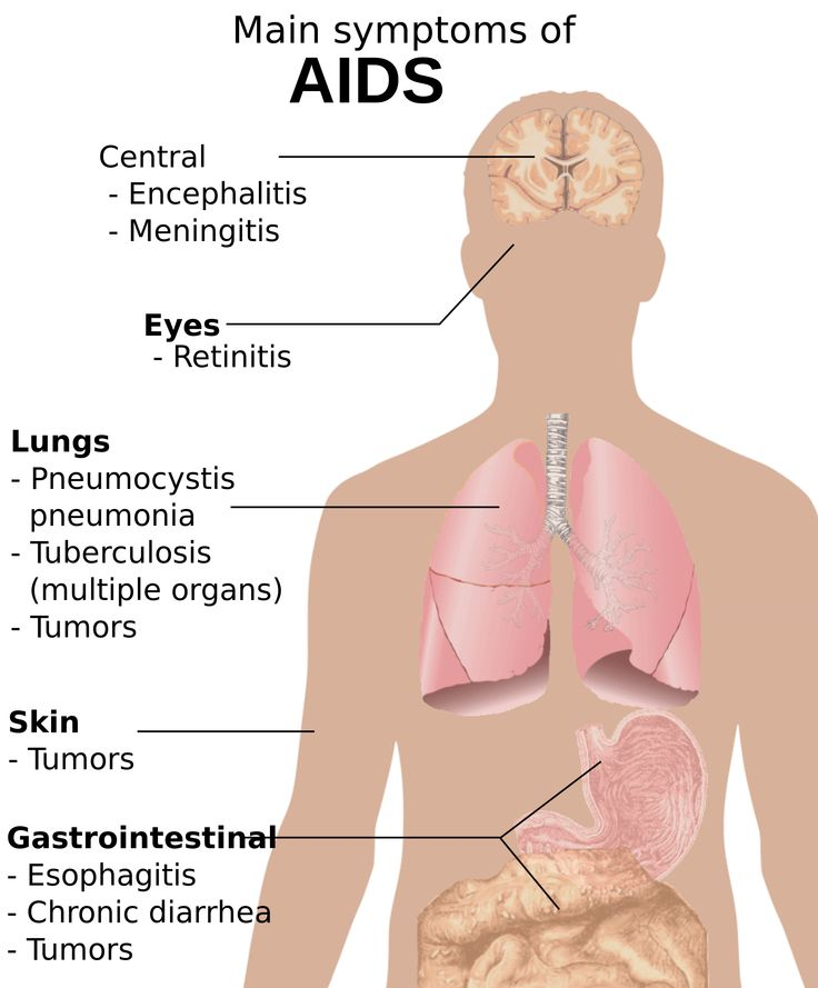 HIV Symptoms of All Stages in Women