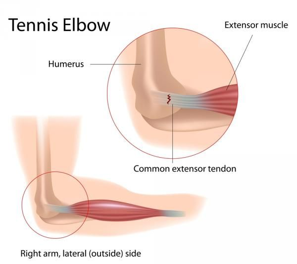 How to Heal Tennis Elbow and Golfer's Elbow | Breaking Muscle