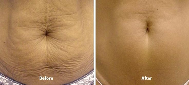"Thermage Stomach Tightening ""Before and After"" Pictures #thermage #skinwin #aboutface"