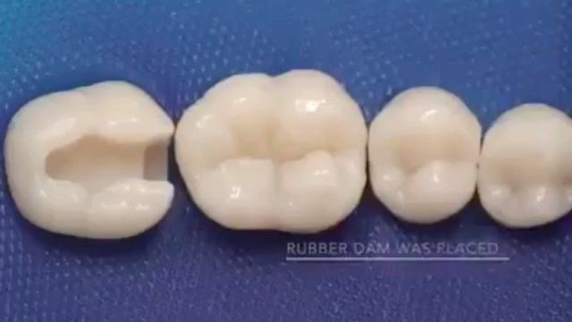 #teeth#tooth#toothless#extraction#cirugiabucal#oralsurgery#dental#dentist#dentistry#matteonegri#dentalhygiene#dentalassistant#dentalschool#dentalstudent#dentalhygiene#implant#implants#odonto#odontogram#odontologo#odontolove#odontología#odontologia#odontogram#odontoporamor#estomatología#prosthesis#prosthodontics#ortho#braces#smile#drawing