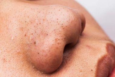 Dr. Pimple Popper Reveals How to Finally Get Rid of Those Pesky Blackheads