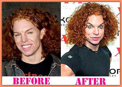 Carrot Top Plastic Surgery A Disaster Cosmetic Operation