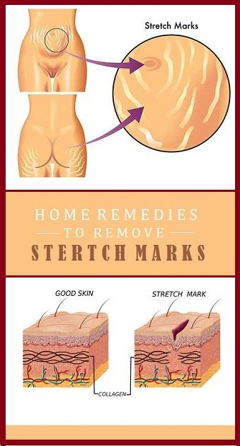 9 Perfect Home Remedies To Remove Stretch Marks - Healthy Food Generation