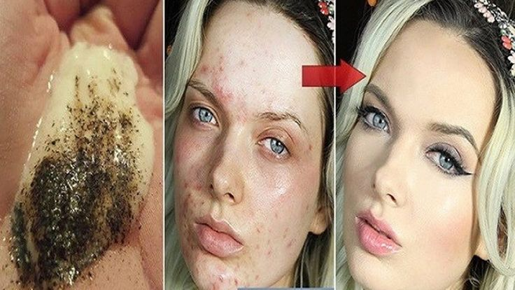 When Mixing These 2 Ingredients Look What Happens To Your Skin After Sev...