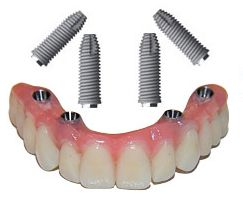 All-On-4® Dental Implants - Cost   Payment Options   Financing