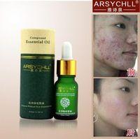Cuidado de la cara crema de eliminación de cicatriz manchas del acné cuidado de la piel tratamiento estrías blanqueamiento eliminar el acné facial esencial cuidado