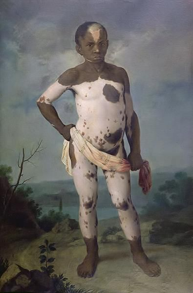 Child with Vitiligo, 1786 (oil on canvas)  Brazilian School, (18th century)  loc: Musee d'Histoire de la Medecine, Paris, France