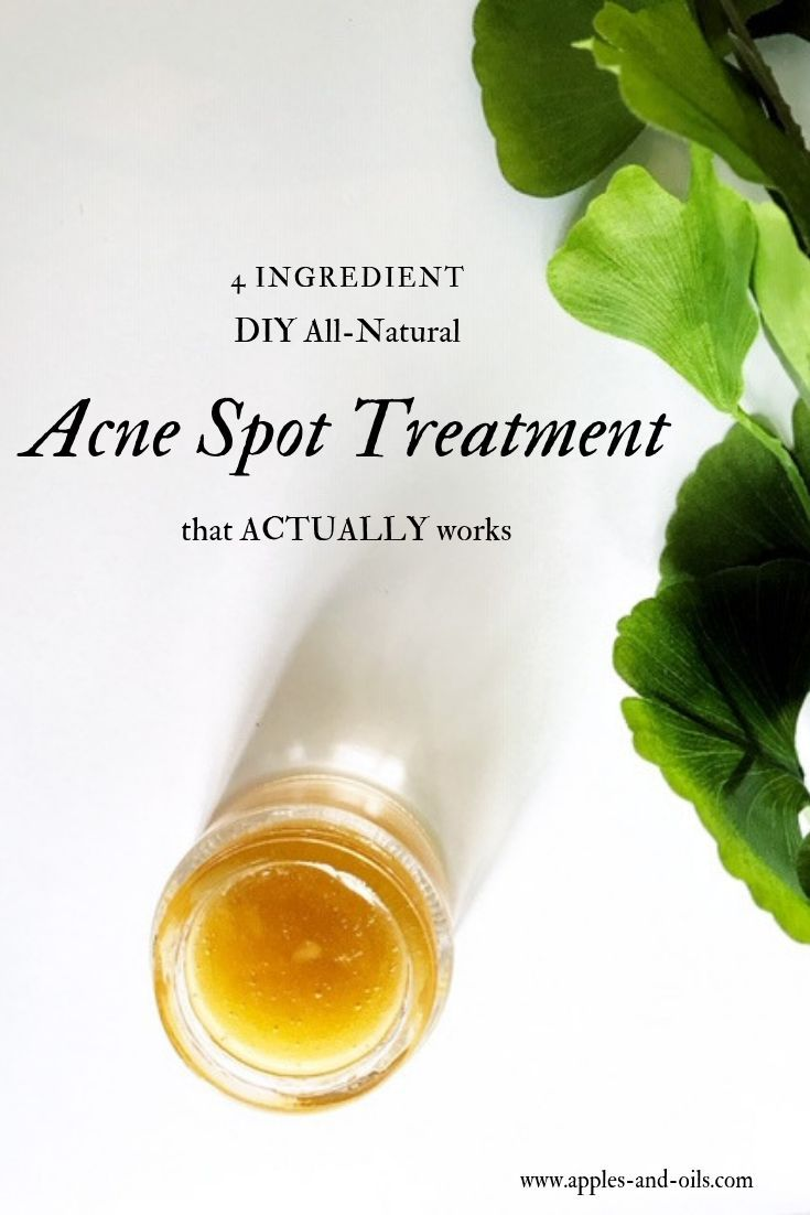 4-ingredient DIY All-Natural Acne Spot Treatment t…
