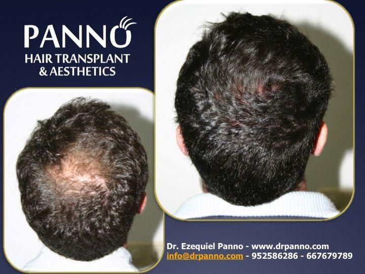 resultados de nuestra TERAPIA REGENERATIVA ANTIALOPECICA SIMPLE, no todos los casos son quirurgicos los tratamientos medicos con el seguimiento del Dr. Panno devuelven el pelo y la autoestima