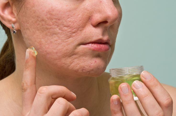 Crema para eliminar cicatrices y rejuvenecedora hecha en casa y en tan solo 10 segundos.