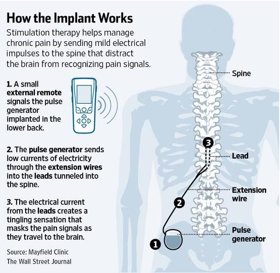 I had this spinal cord stimulator (SCS) implant done in March, and it has given me back my life! Its like a miracle the way it works. Side effects? Yeah. I can walk again. Hows that for a side effect!!
