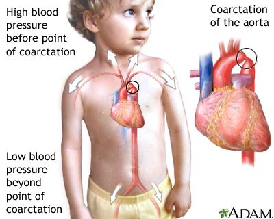 HomeoCity: High Blood Pressure - Infants