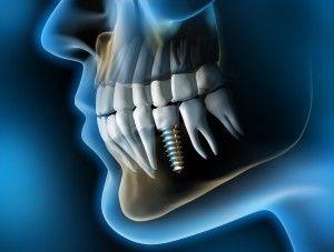 #implant #zębowy #implanty stomatologiczne