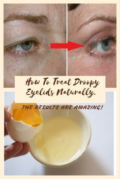 how to fix uneven eyelids naturally