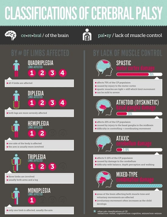 Very cool visual. helps people understand what types of cerebral palsey there is an what it does to the body! | Repinned by Personal Touch Therapy. Follow all of our pediatric therapy boards @ELLE Magazine (US) Touch Therapy