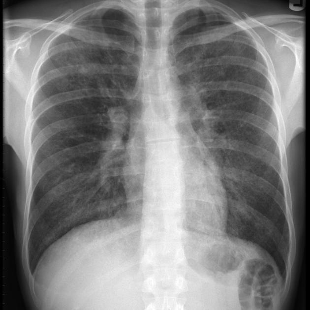 Pneumocystis pneumonia | Radiology Reference Article | Radiopaedia.org