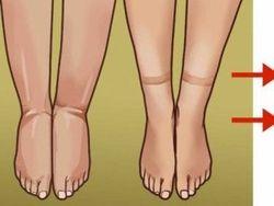 Ritenzione idrica: ecco cosa fare per ridurre il gonfiore alle gambe