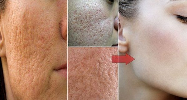 Visible pores happen as a result of extra oil skin and many people battle with this problem. Large pores are not a nice sight so we try to do whatever…