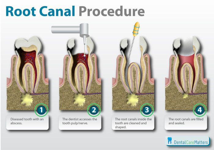 The root canal procedure demystified. For more tips for dental school, check out http://tmiky.com/pinterest