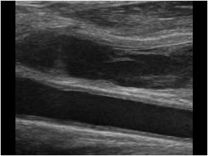 Lemierre's syndrome or jugular vein thrombosis in a patient with a neck infection and enlarged lymph nodes