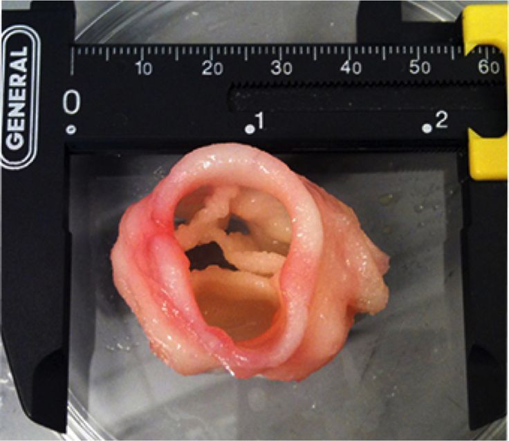 No Donor Required: 5 Body Parts You Can Make With 3-D Printers [Regenerative Medicine & Bioprinting: http://futuristicnews.com/tag/regenerative-medicine/ 3D Printing: http://futuristicnews.com/tag/3d-printing/]