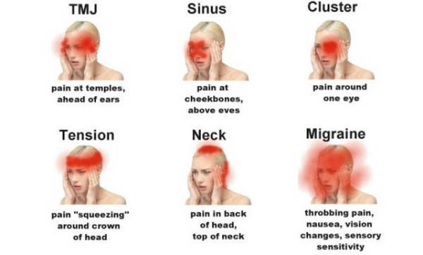 Headache :  8 Types Everyone Need To Know #health #home #people #homeremedies #santé #headache