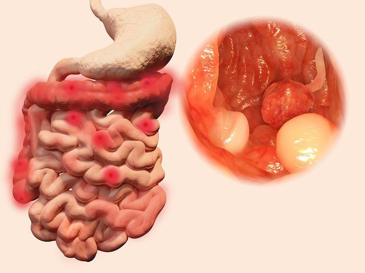 bigstock Polyps in the intestines 98375816