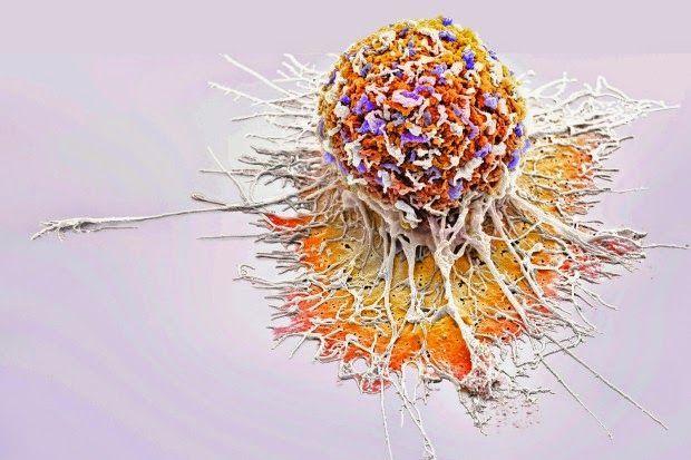 Schon gewußt? – dass Krebs in Israel eine Ausnahmeerscheinung ist ? Warum das so ist . .   Liebe – Isst – Leben