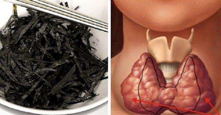 A glândula tireoide tem grande importância para a nossa saúde. Se ela não funcionar bem, o organismo ficará bastante perturbado. A tireoide produz hormônios essenciais para que tenhamos energia e disposição.