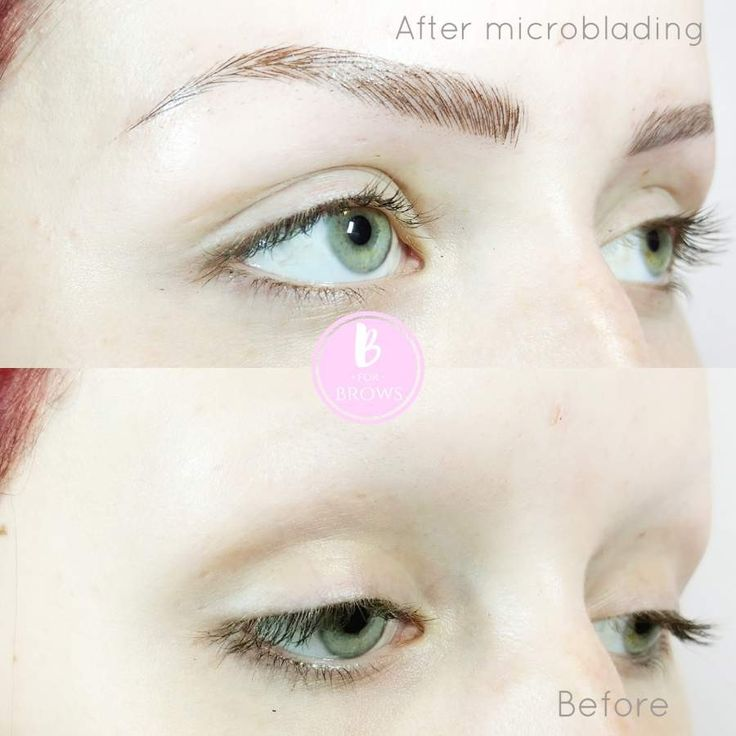Alopecia microblading eyebrows before and after by b for